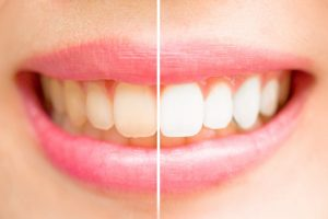 Teeth before and after teeth-whitening.