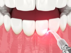 Illustration of soft tissue dental laser being used for periodontal procedure